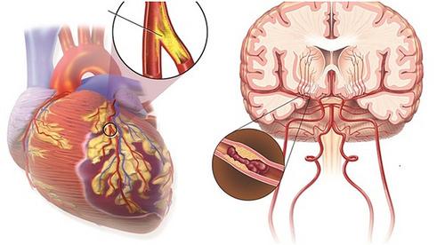 Tắc nghẽn mạch máu não có nguy hiểm không? Nguyên nhân, dấu hiệu