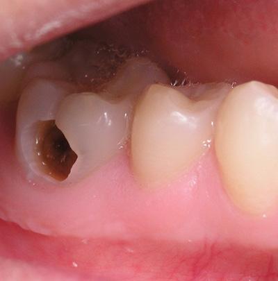 Hàn răng sâu là gì? Những điều bạn không thể bỏ qua khi hàn răng sâu