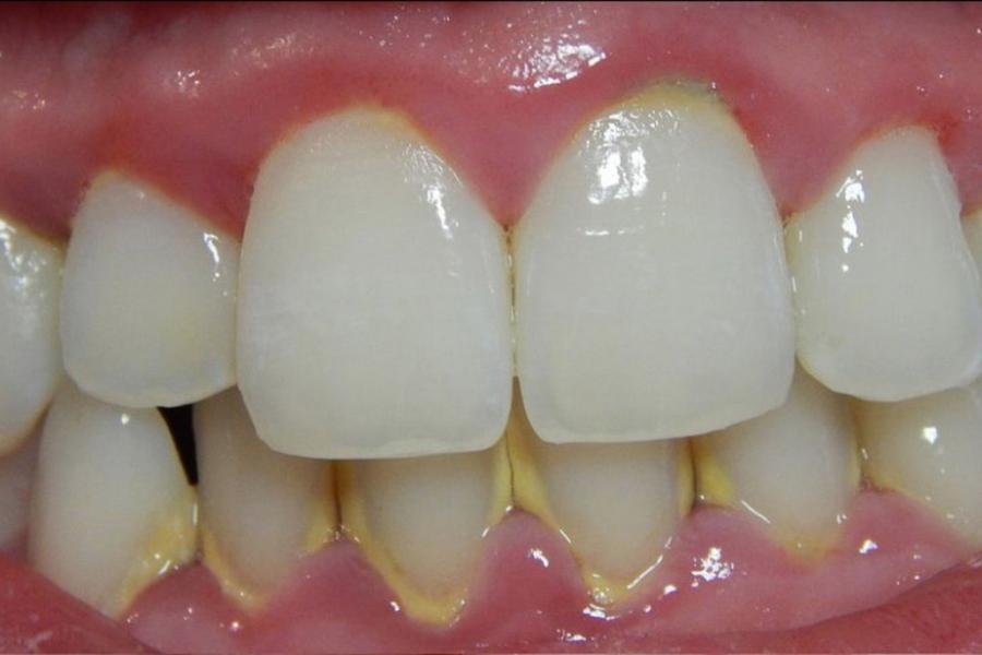 Mách bạn những cách để loại bỏ mảng bám răng tại nhà hiệu quả nhất