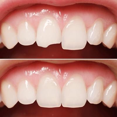 Răng bị mẻ: nguyên nhân – triệu chứng – cách điều trị